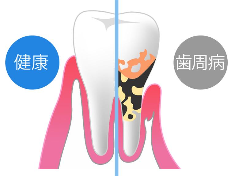 歯周病の進行度と放置するリスク
